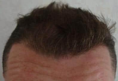 resultat greffe de cheveux 6 mois