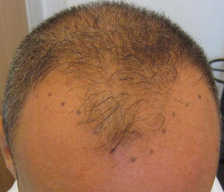 avant intervention greffe cheveux