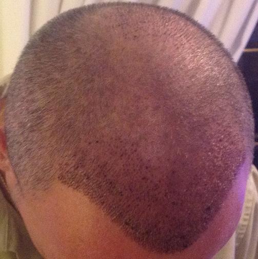 controle 1 semaine greffe de cheveux