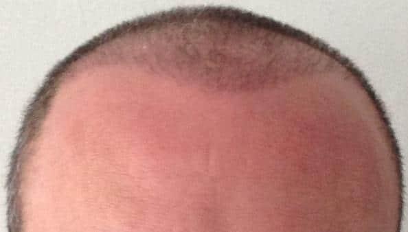 greffe de cheveux 3 mois resultat