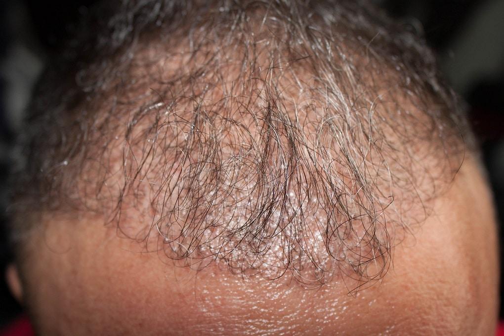 3 mois apres implant capillaire