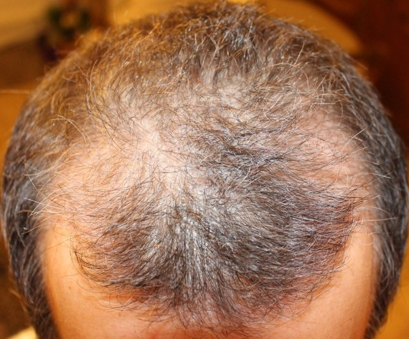 3 mois suivant greffe de cheveux