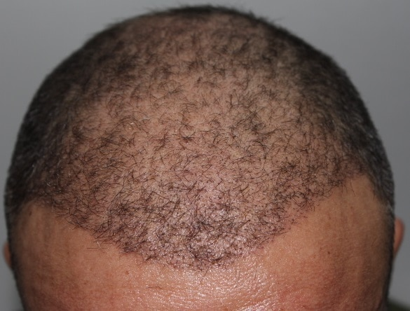 3 semaines apres greffe capillaire