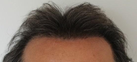 6 mois apres greffe de cheveux fue safe hairpalace