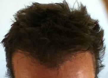 6 mois resultat greffe de cheveux