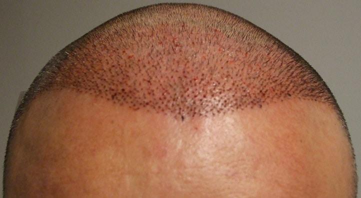 apres implant capillaire