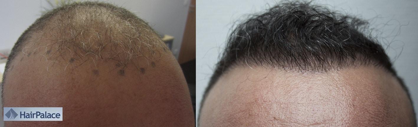 avant apres photo greffe de cheveux