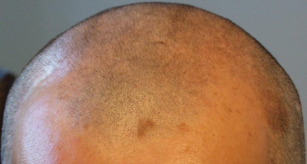 avant greffe capillaire