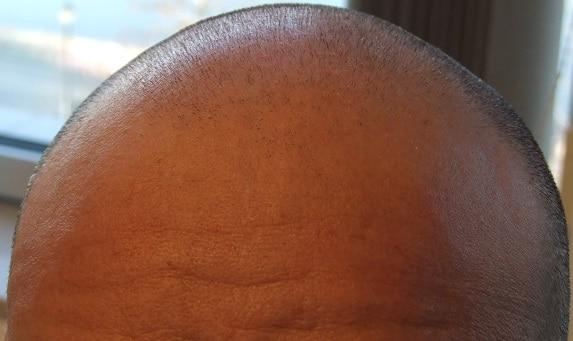 avant greffe de cheveux 2