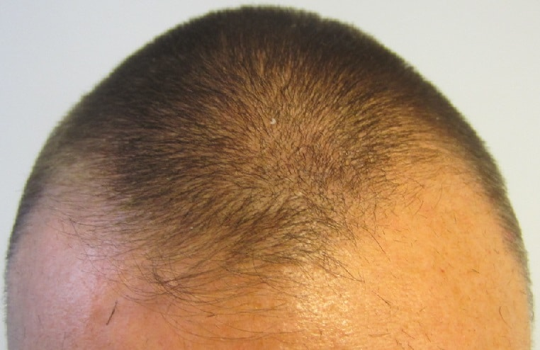 avant implant capillaire