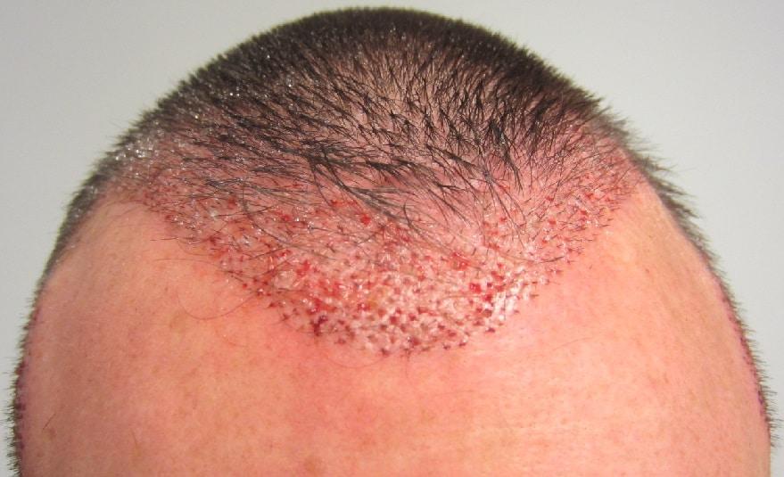 implant capillaire apres