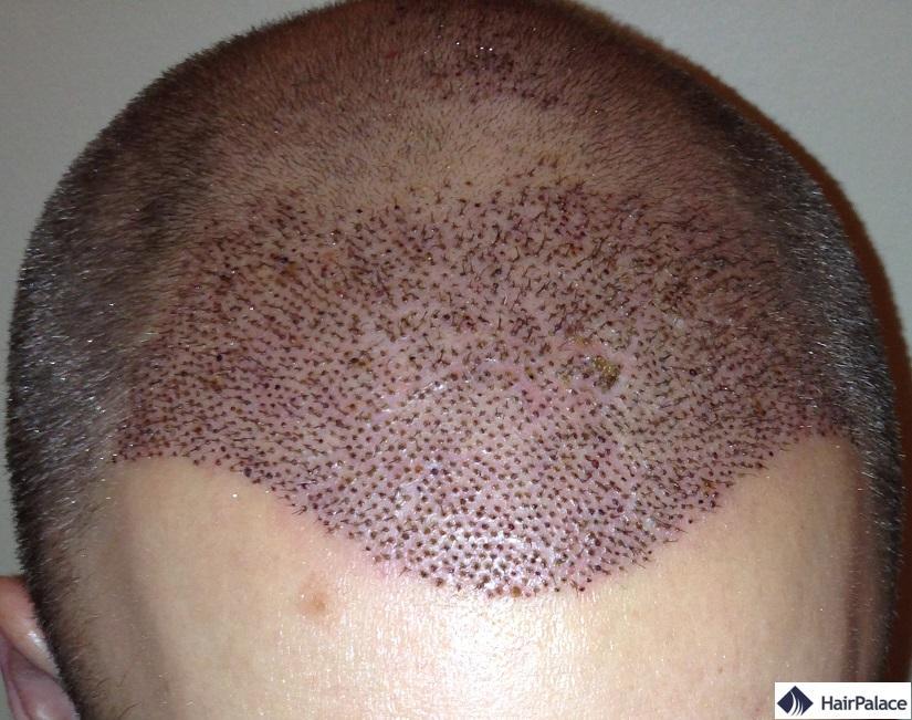 1 semaine greffe de cheveux