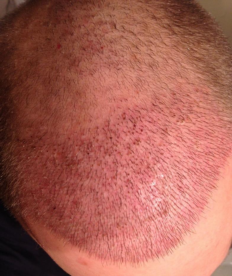 10 jours apres implant capillaire