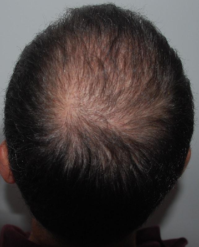 6 mois apres greffe de cheveux