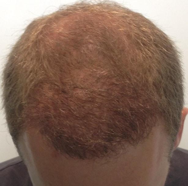 6 mois resultat greffe de cheveux fue