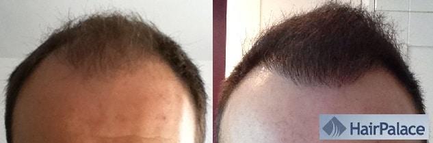 avant apres greffe cheveux hairpalace resultat