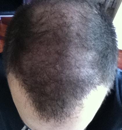 resultat greffe de cheveux hairpalace 6 mois