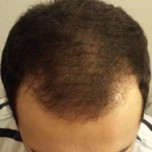 3 mois apres greffe de cheveux