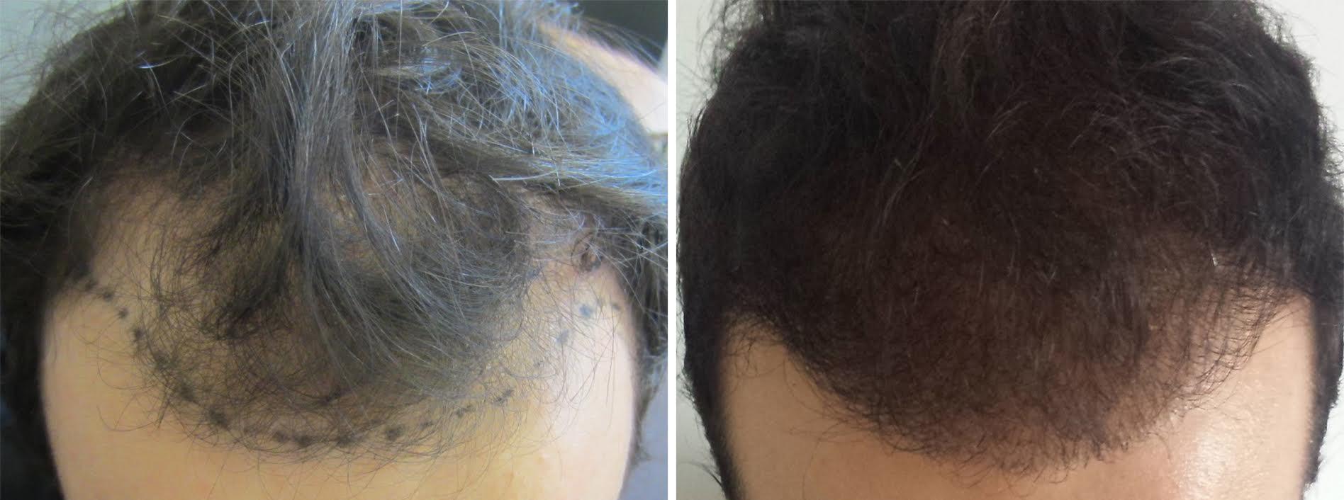 avant apres greffe de cheveux
