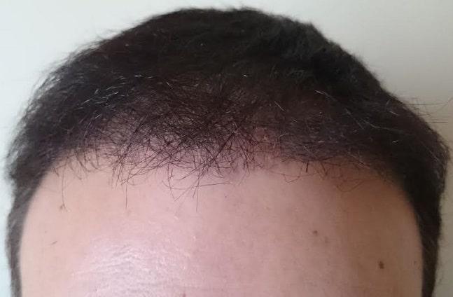 6 mois suivant la greffe capillaire