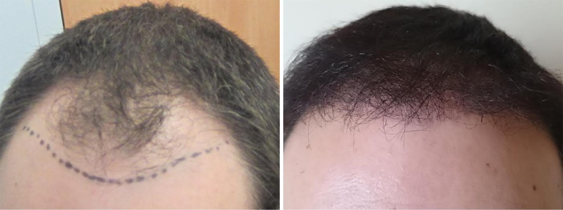 avant apres greffe capillaire hairpalace