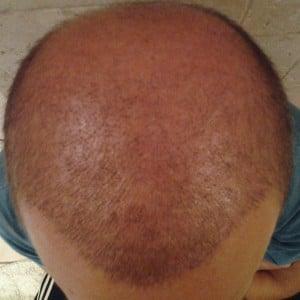 resultat 3 semaines