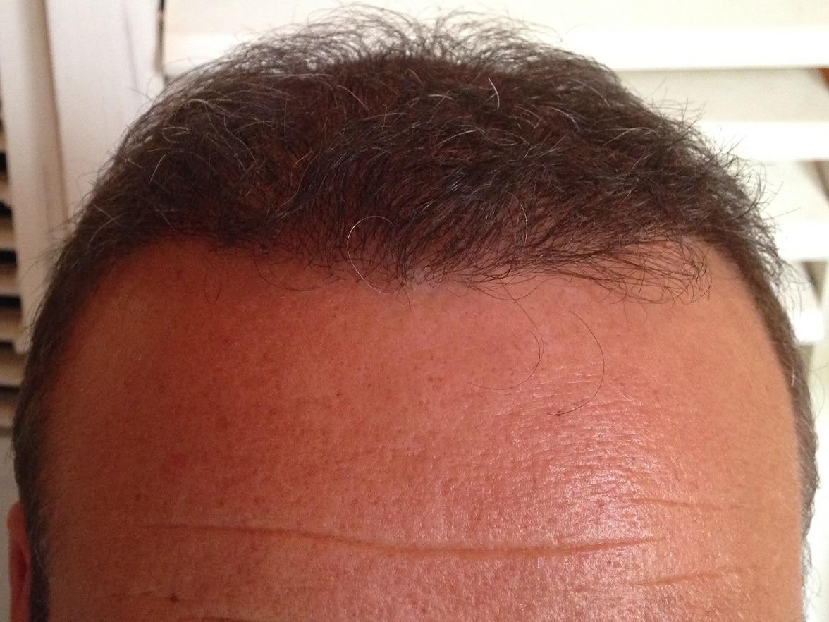 resultat de 6 mois hairpalace