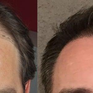 avant apres greffe de cheveux hairpalace