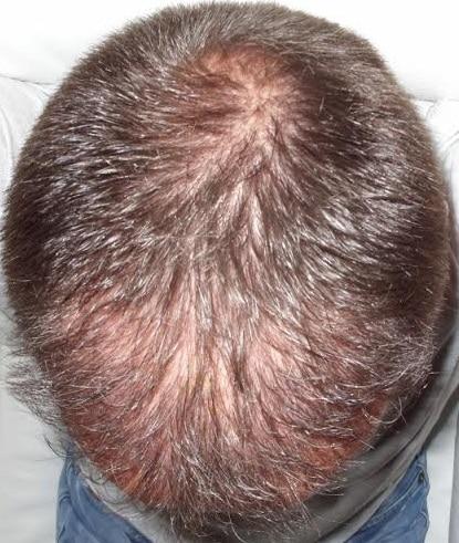 6 mois apres greffe cheveux