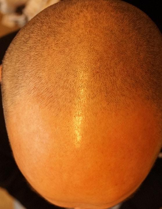 avant greffe capillaire hairpalace