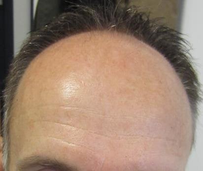 avant la greffe de cheveux front