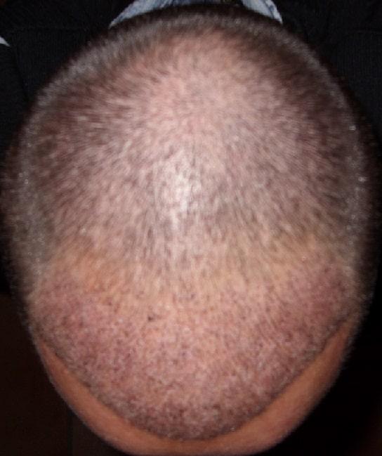 greffe de cheveux hairpalace 1 semaine
