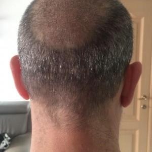 1 week after fue hair transplant