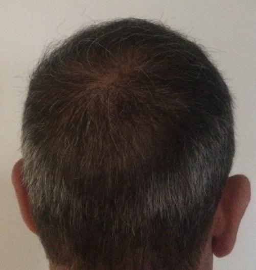 resultat 1 année apres la greffe hairpalace