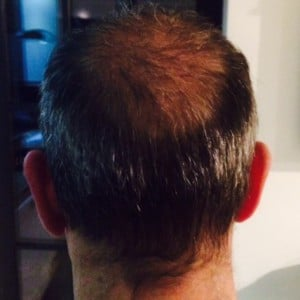 3 mois suivant l'implant capillaire