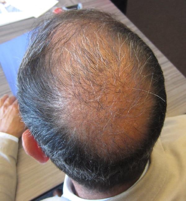 avant la greffe de cheveux