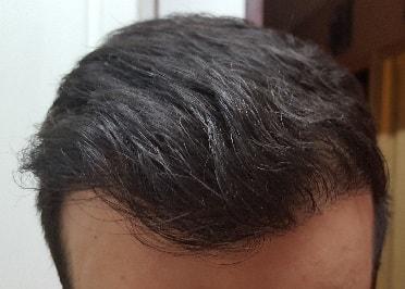 greffe de cheveux fue avec jonathan r sultat fantastique hairpalace. Black Bedroom Furniture Sets. Home Design Ideas