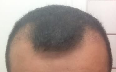 after-hair-transplantation-3-months