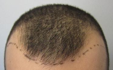 before-hair-transplant