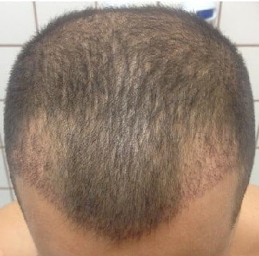 fue-hair-transplant-3 weeks-after