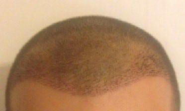 greffe-de-cheveux-1-semaine