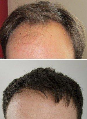 Greffe de cheveux prix - HairPalace références - Chrisophe