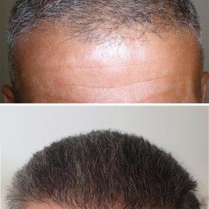 HairPalace références - Gérard