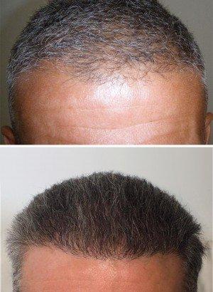 Greffe de cheveux prix moins cher