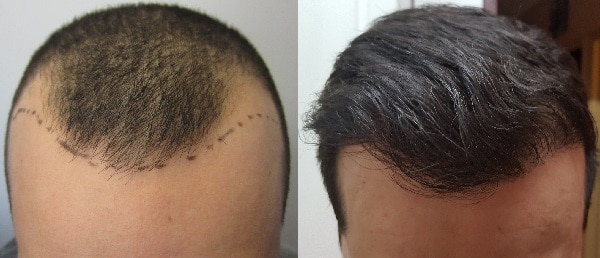 hair-transplant-surgery-bedofe-after