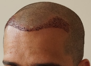right-after-hair-transplant
