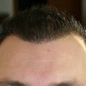 1 an apres greffe de cheveux