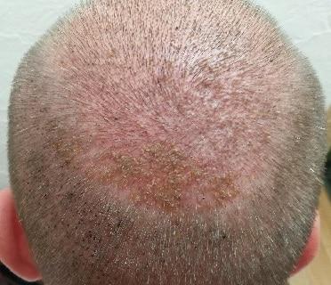 1-semaine-apres-greffe-de-cheveux