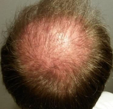 3-mois-apres-greffe-de-cheveux