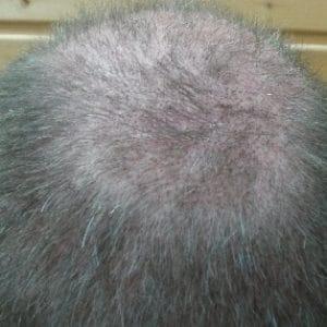 3-semaines-apres-greffe-de-cheveux